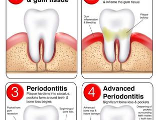 Bagaimana Karang Gigi Terbentuk