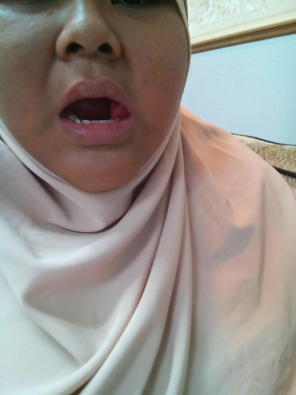 gambar pertama selepas gigi hilang darah banyak kebas separuh muka...