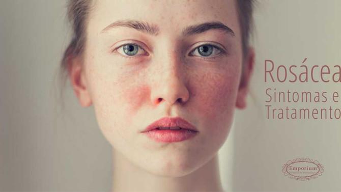 Rosácea- Sintomas e Opções Tratamentos