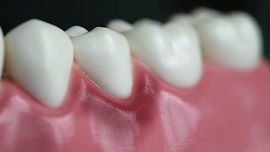 periodontia-foto.jpg