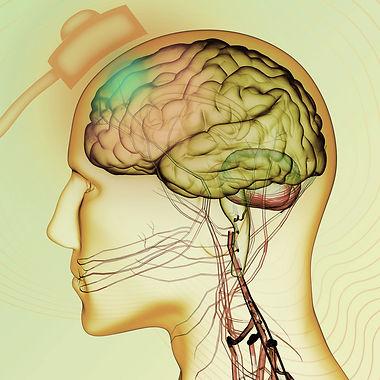 0015-Neuromodulação.jpg