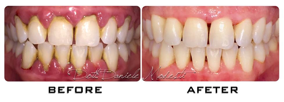 Terapia parodontale non chirurgica.