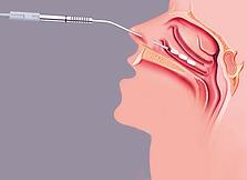 turbinoplastia