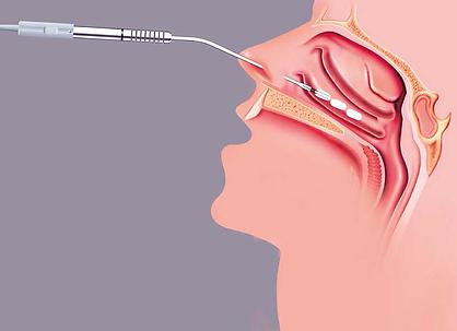cirugía de cornetes