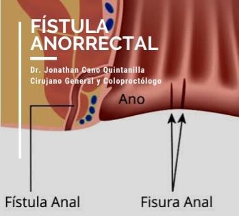 Fístula Anorrectal