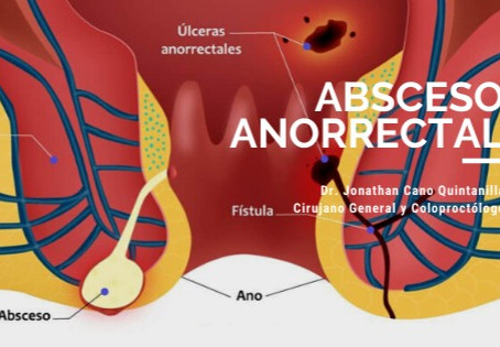 Absceso anorrectal