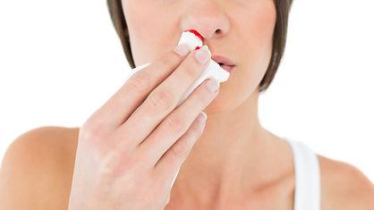 sangrado de nariz