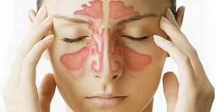 Padeciemientos de nariz más comunes