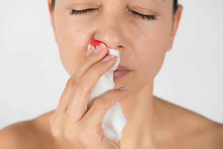 epistaxis sangrado nasal