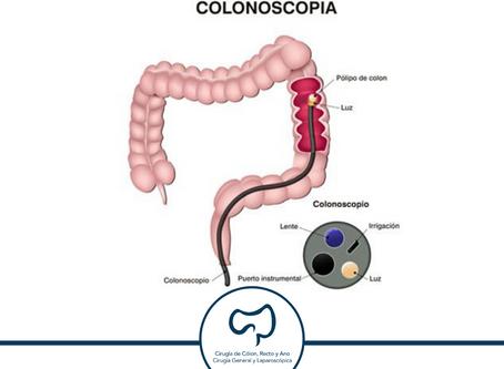 Hemorragia de tubo digestivo baja