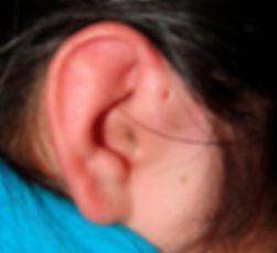 fistulas preauriculares en niños