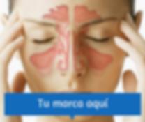 marketing para otorrinolaringologia 2.pn