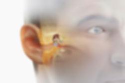 Miringoplastía