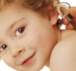 hipoacusia en niños