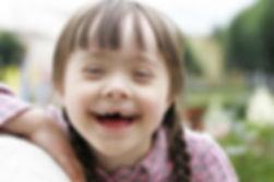 enfermedades congenitas de nariz en niños