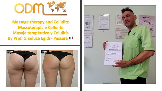 Massage therapy and Cellulite .jpeg