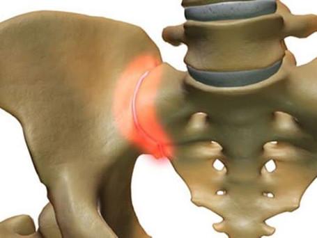 🇮🇹 Ignorare l'articolazione sacroiliaca nel dolore cronico della schiena piò essere costoso.