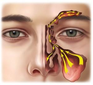 🇮🇹 Digitopressione per sinusite.