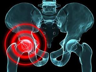 🇮🇹 Sviluppo di un protocollo non chirurgico per trattare la sindrome da  conflitto femoro-acetabol