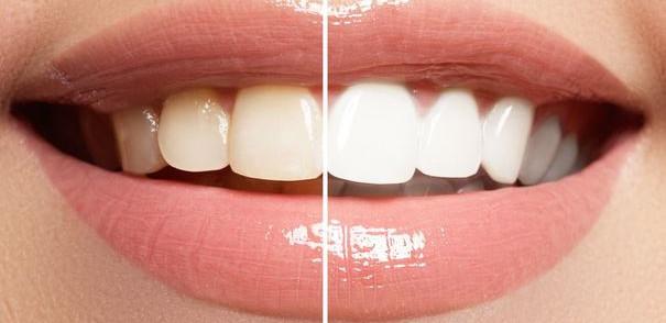 Natura Teeth Whitening