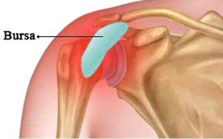 Shoulder Bursitis - Causes, Symptoms and Exercises