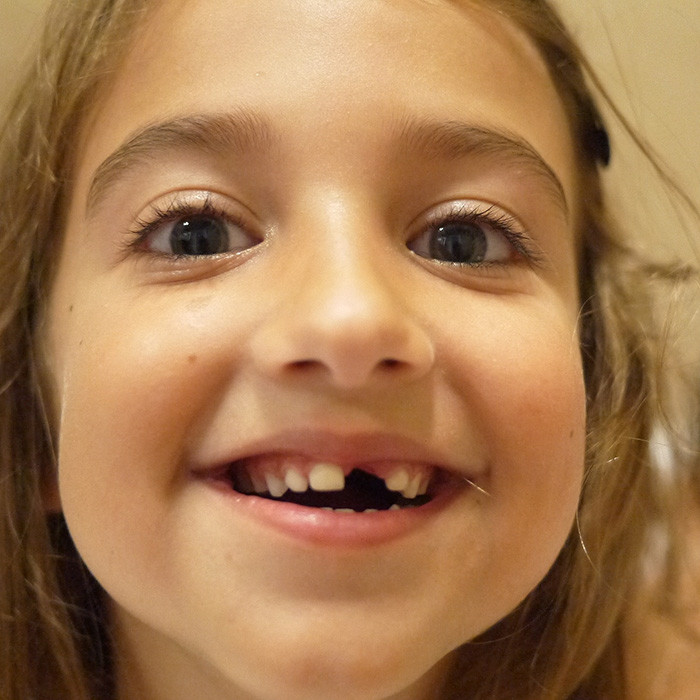 child missing some front teeth