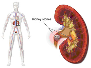 Kidney Stones: Blood, Pain and Protein