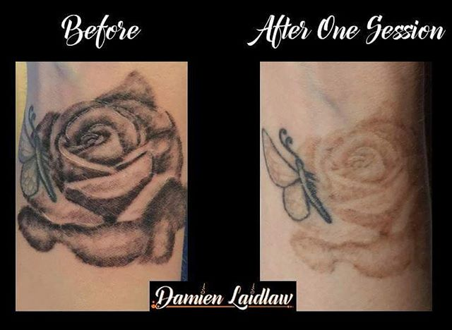 Sophie's rose and butterfly after 1 treatment _) #ashford #byebyetattoo #bankstreet #consultation #c