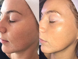 Dermaplaning: What You Need to Know and Myths Debunked