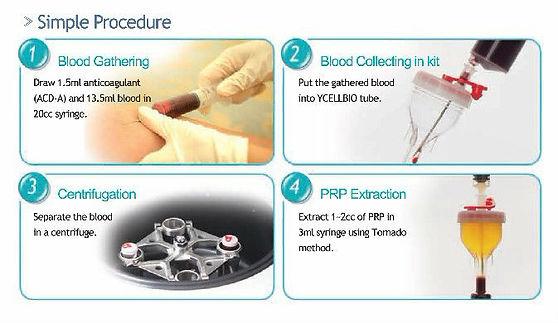 PRP Treatment aoklinik acne scars