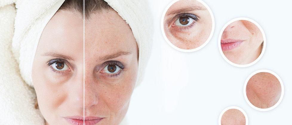 Skin Resurfacing Penang
