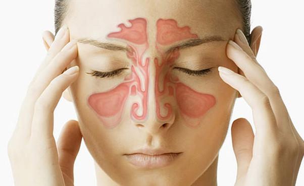 Sinusite crônica: o que é e como tratá-la?