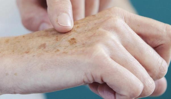 Câncer de pele: saiba como identificar e tratar os sintomas