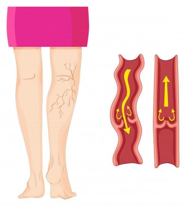 O fim das varizes com a escleroterapia