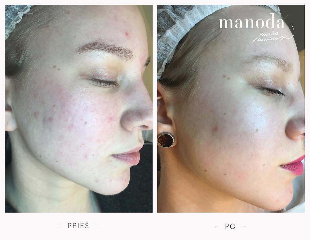 Veido odos procedūros mažinančios bėrimus ir raudonį