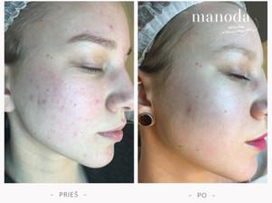 Veido odos procedūros, mažinančios bėrimus bei raudonį
