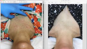 Atopinio dermatito sumažinimas