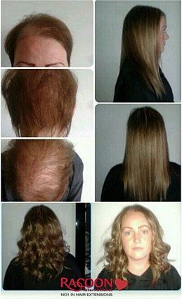 Hair and beauty salon belfast hair extensions after chemotherapy pmusecretfo Gallery