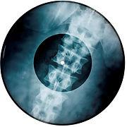 bone record.jpg