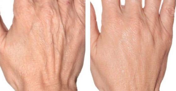 100% HA (Hyaluronic Acid) Advanced Remodelling & Skin Laxity Treatment