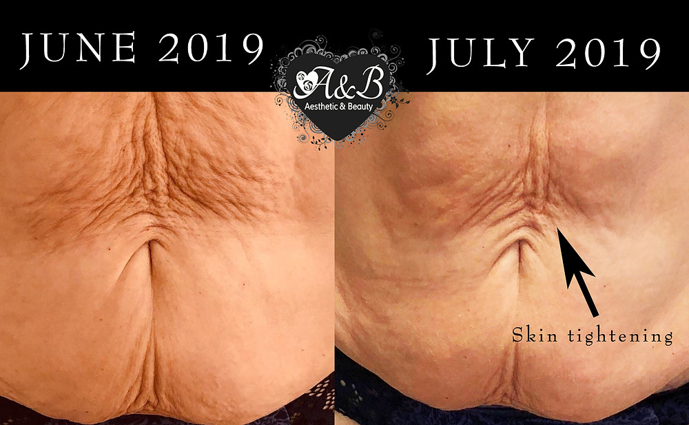 Results from Shrinking Violet Body Wraps with Extreme Booster and Ultrasonic Fat Loss Cavitation.
