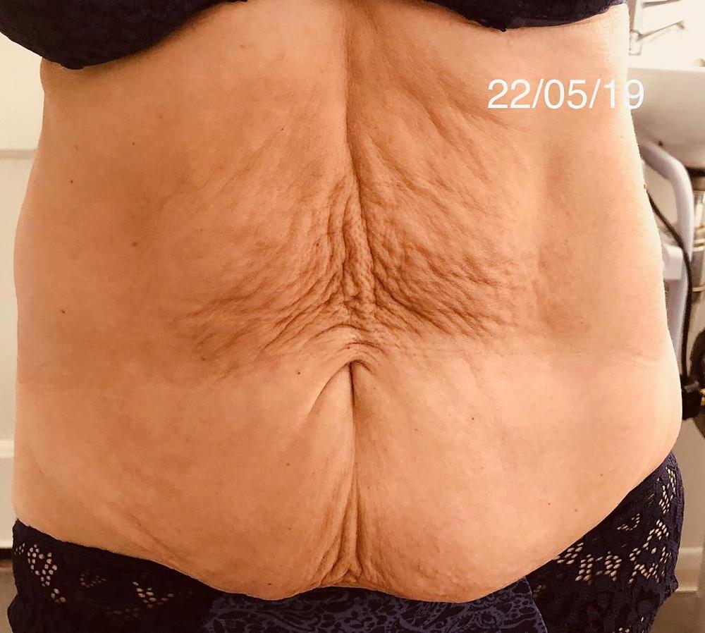 Loose skin & 'tummy apron'