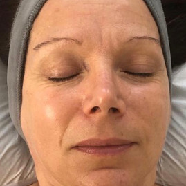 Organic Radiance Facial - Before