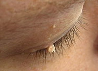 Skin Tag Removal