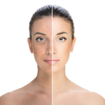 Laser Skin Rejuvenation (Resurfacing) in Eastbourne