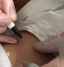Cautery Skin Tag Removal