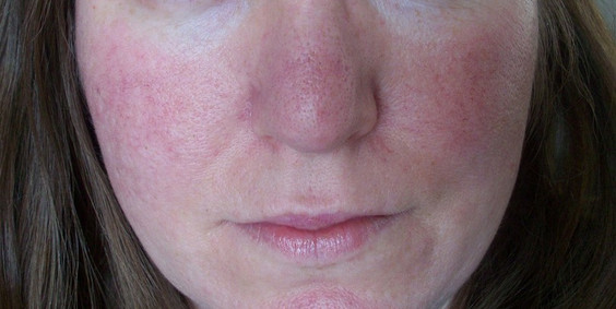 Rosacea Treatment in Eastbourne