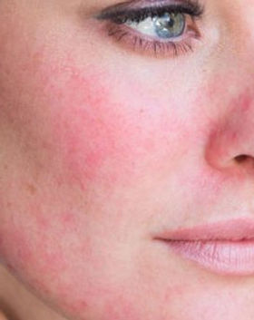 Rosecea Treatment in Eastbourne