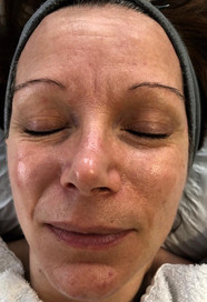 Advanced Treatment Facial - Before