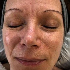 Before Skin Radiance 'So Pure' Organic Facial